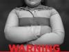 child-obesity-1